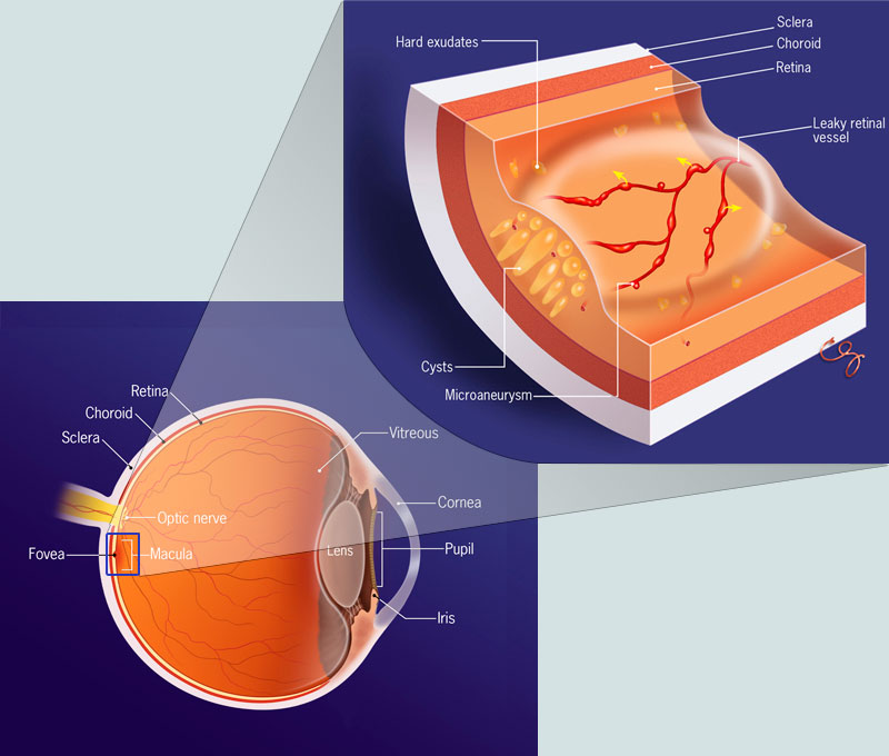 What Is Diabetic Macular Edema Dme Treat My Dme